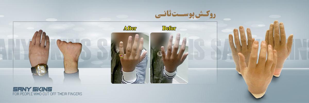 روکش پوست ثانی-www.sanybody.com