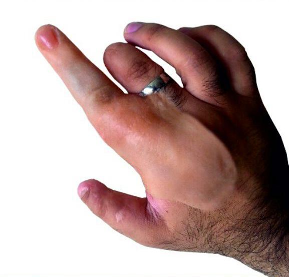 دست مصنوعی مکانیکی ثانی sanybody.com